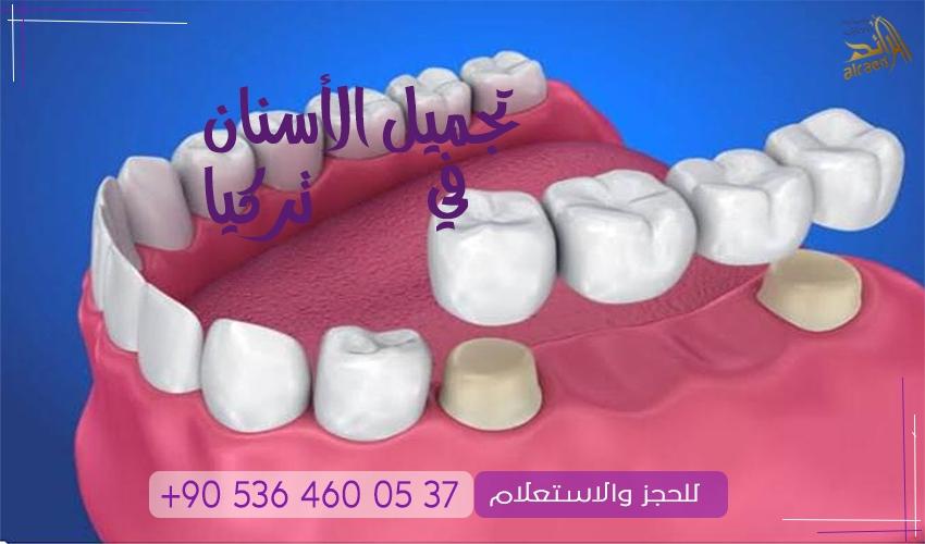 زراعة الأسنان والجسور في تركيا