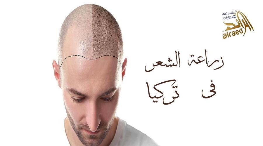 زراعة الشعر في تركيا 2019